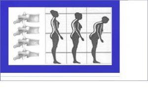 Osteo Posture pic